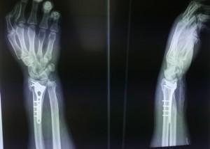 orthopedikos xeirourgos